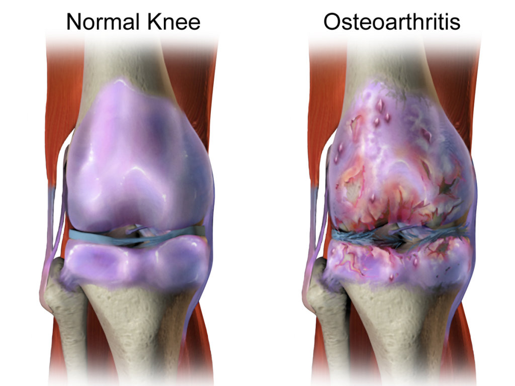 osteoarthritis in the knee